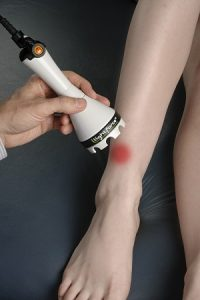 Ankle Treatment 2